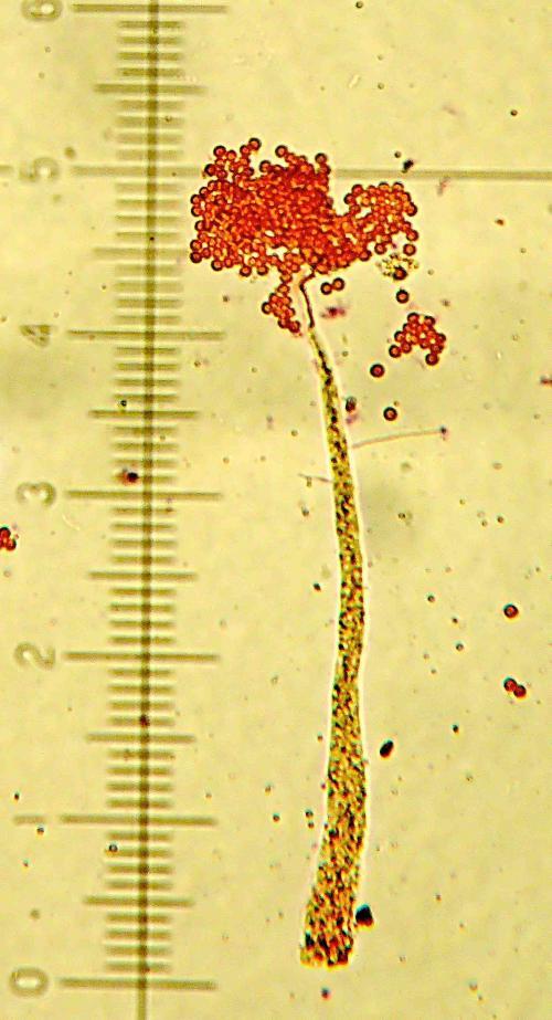Echinostelium minutum X 100
