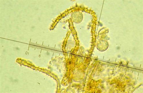 H pardina spores