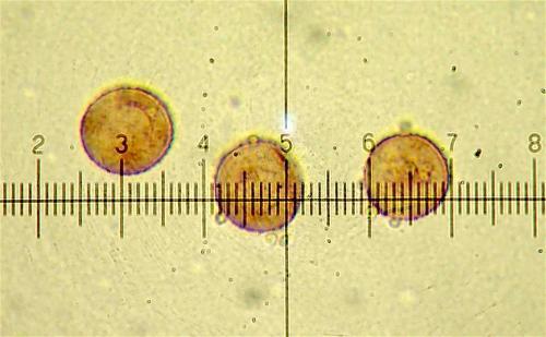 P. pusillum spores1
