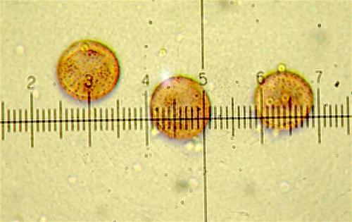 P pusillum spores2