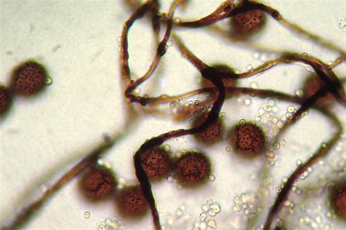 did fal spores1