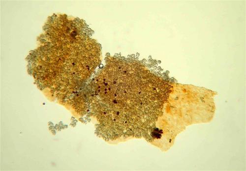 Lepido pey péridium